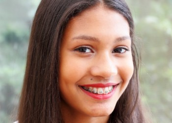 Braces for Teenagers, BC Orthodontist